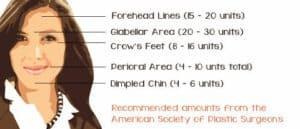 Botox Unit Chart